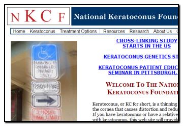National Keratoconus Foundation